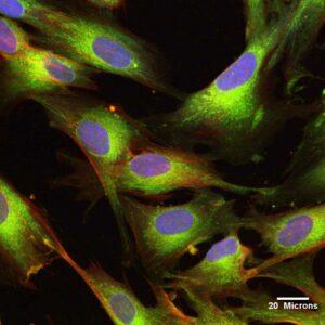 Células-tronco UCMSC